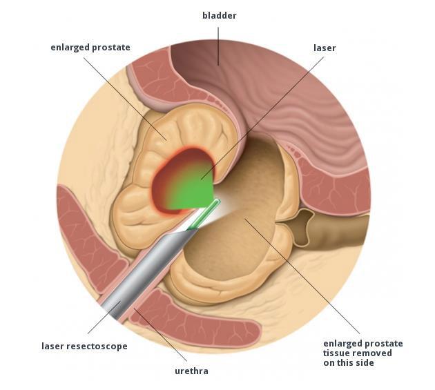 Green Laser Prostata - Ipertrofia prostatica benigna - vaporizzazione laser