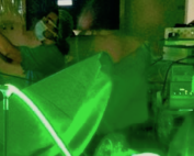 Greenlaser-It-Lorenzo-Ruggera-Vaporizzazione-Anatomica-Prostata-Clinca-Urologica-Padova-Video-Step-By-Step